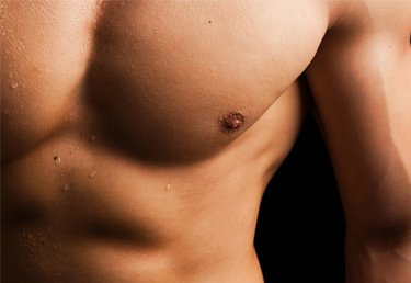 gynecomastia-surgery-ohio-gallery