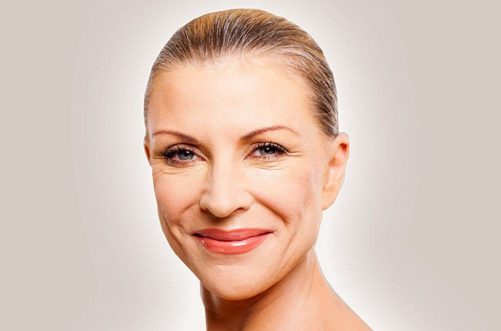 roxy-plastic-surgery-wrinkle-filler