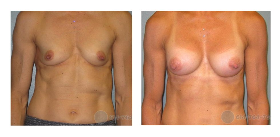 breast-aug-in-ohio-before-after-10017