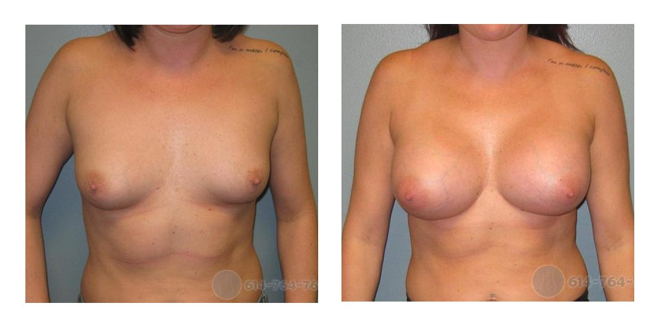 breast-aug-surgeon-ohio-before-after-10016