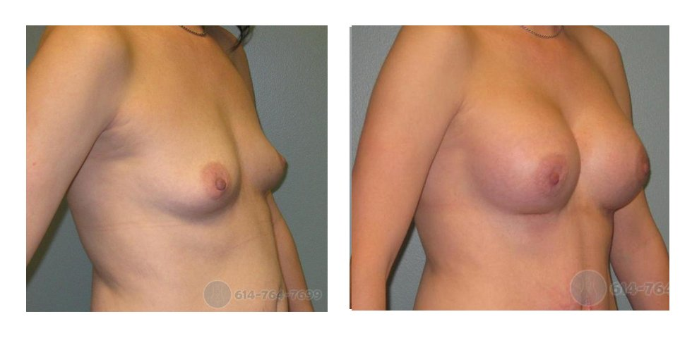 breast-augmentation-columbus-oh-before-after-10021
