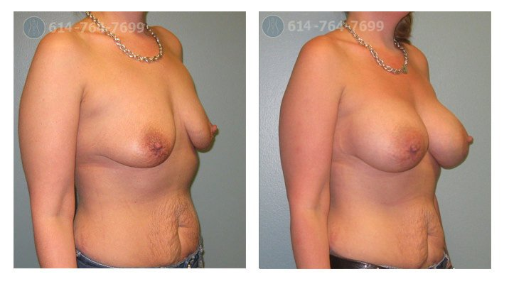 breast-implant-doctors-before-after-columbus-ohio