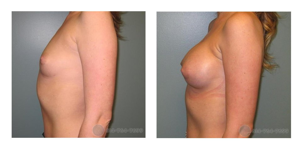 breast-implant-surgery-ohio-before-after-10012