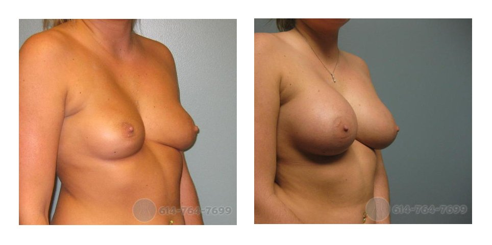 breast-implants-columbus-oh-before-after-10001