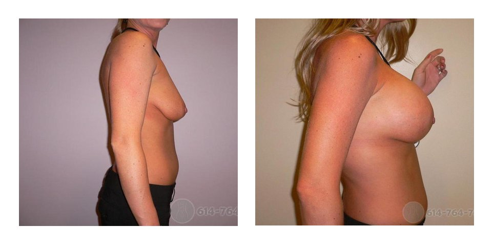 columbus-breast-augmentation-before-after-10006