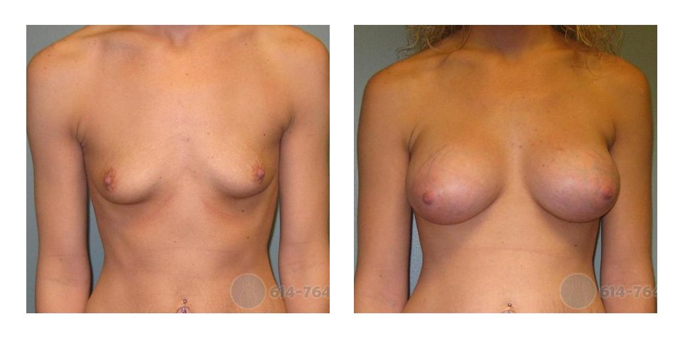 columbus-breast-implants-before-after-10011