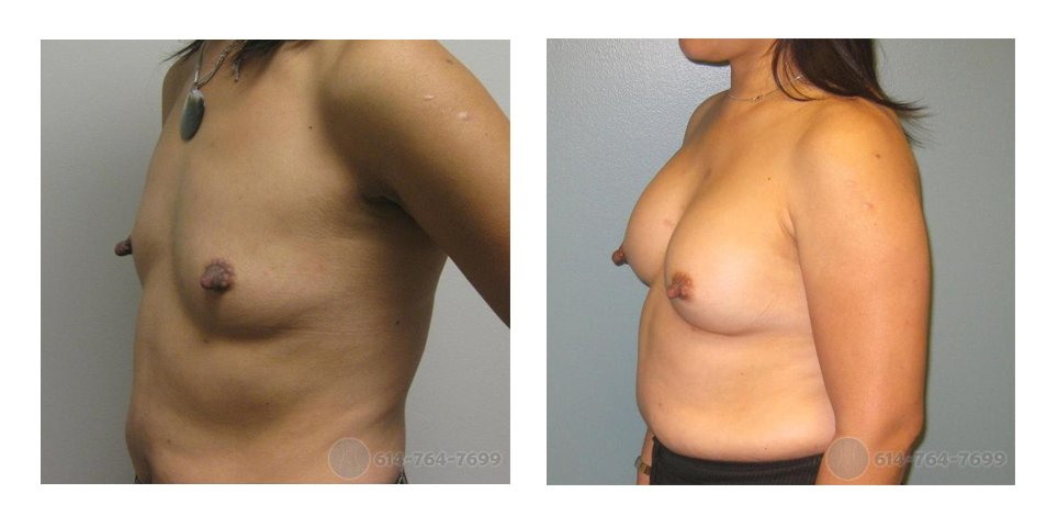 columbus-oh-breast-implants-before-after-10020