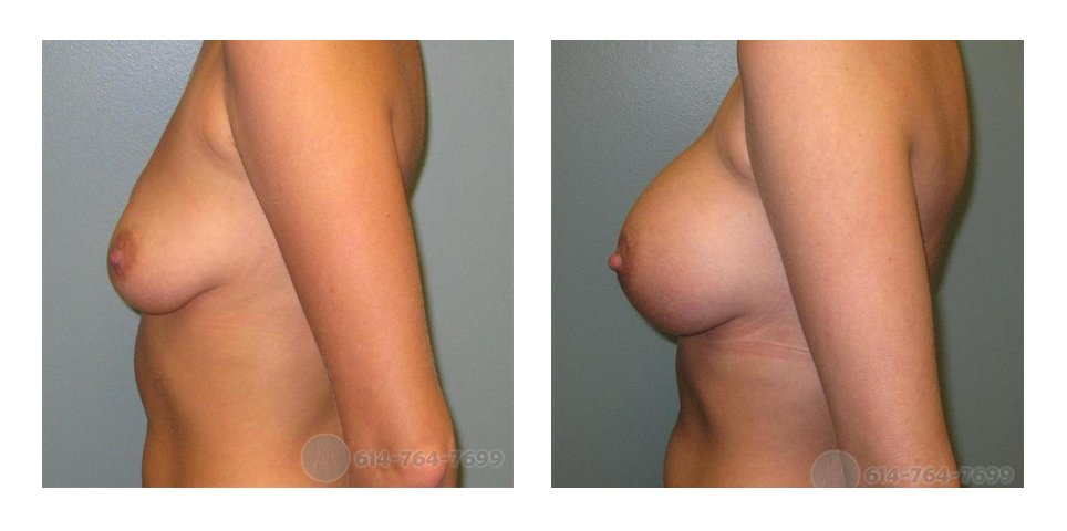 columbus-ohio-breast-augmentation-before-after-10018