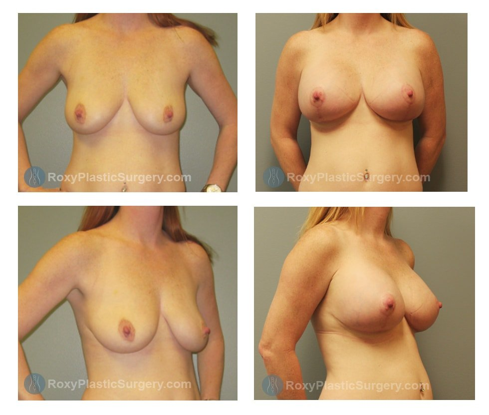 columbus-ohio-breast-augmentation-mastopexy-before-after-