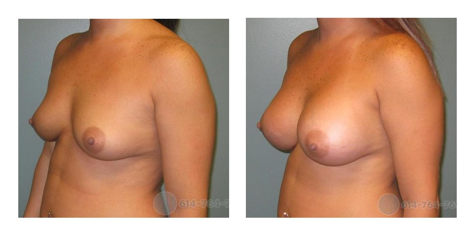 columbus-ohio-breast-augmentation-surgery-before-after-10019