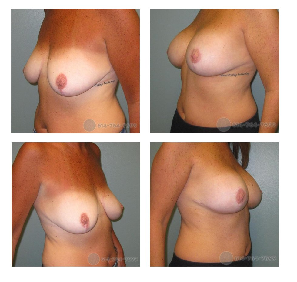 columbus-ohio-breast-lift-augmentation-before-after-10062