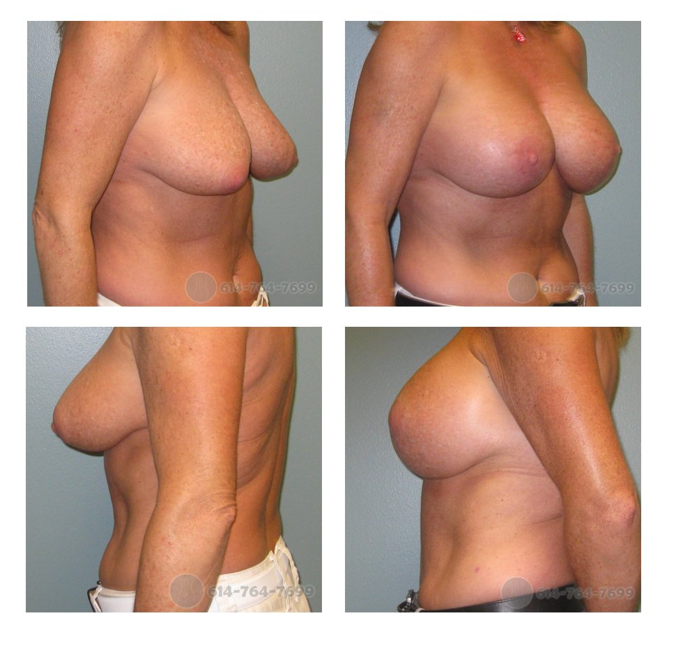 columbus-ohio-breast-lift-with-implants-before-after-10073