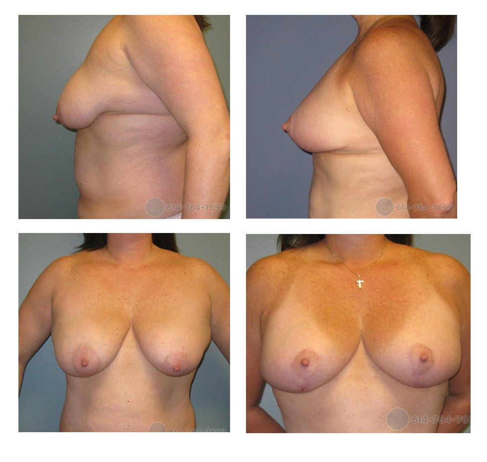 columbus-ohio-mastopexy-before-after-10060