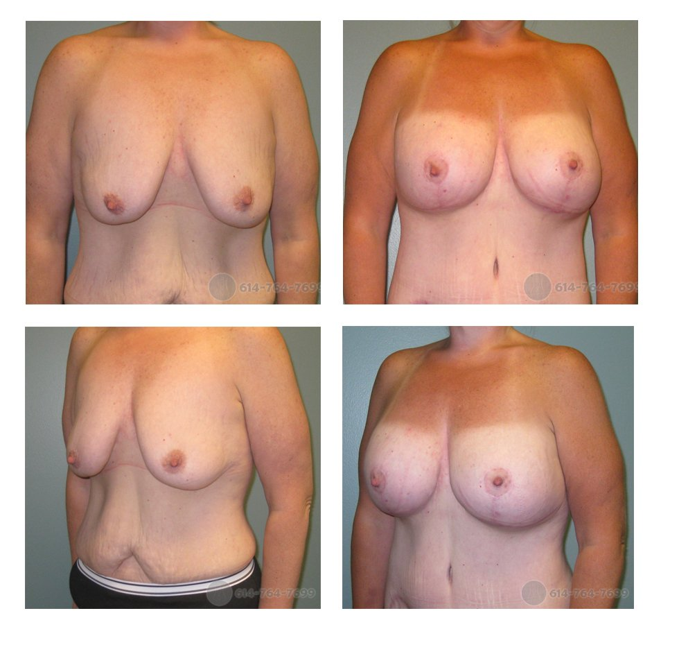 mastopexy-columbus-ohio-before-after-10074