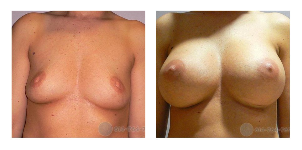 ohio-breast-aug-surgery-before-after-10010