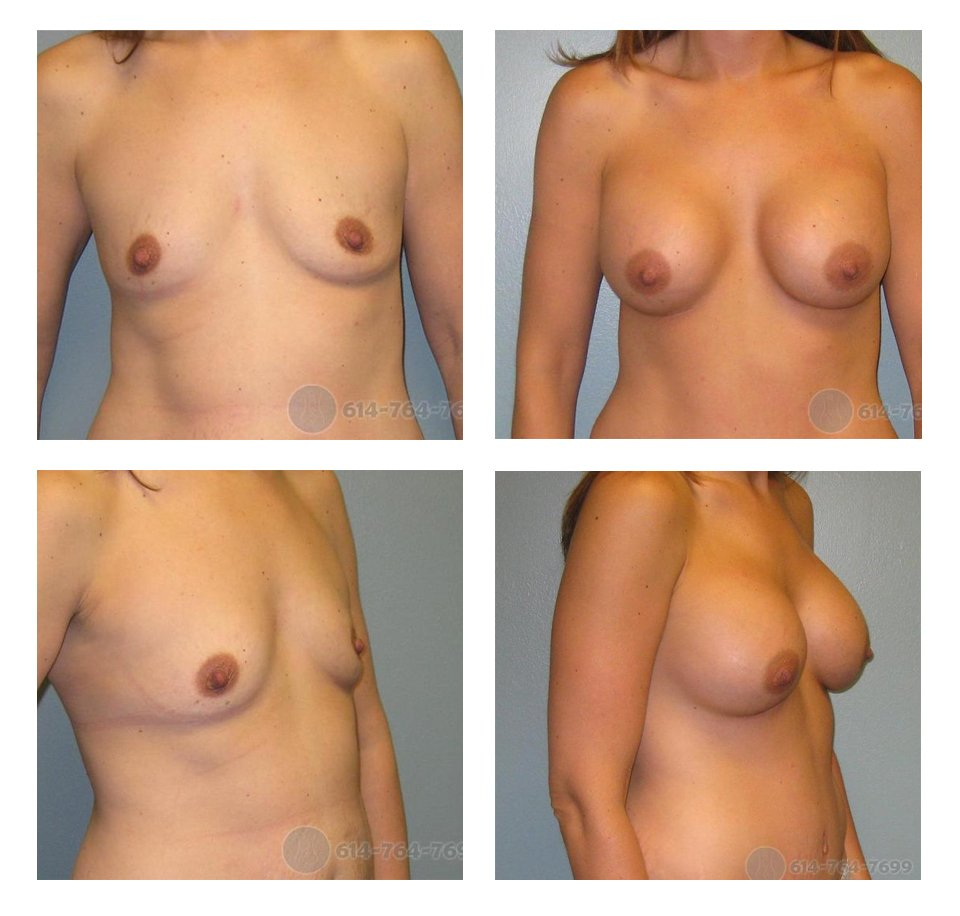 ohio-breast-augmentation-surgery-before-after-10013