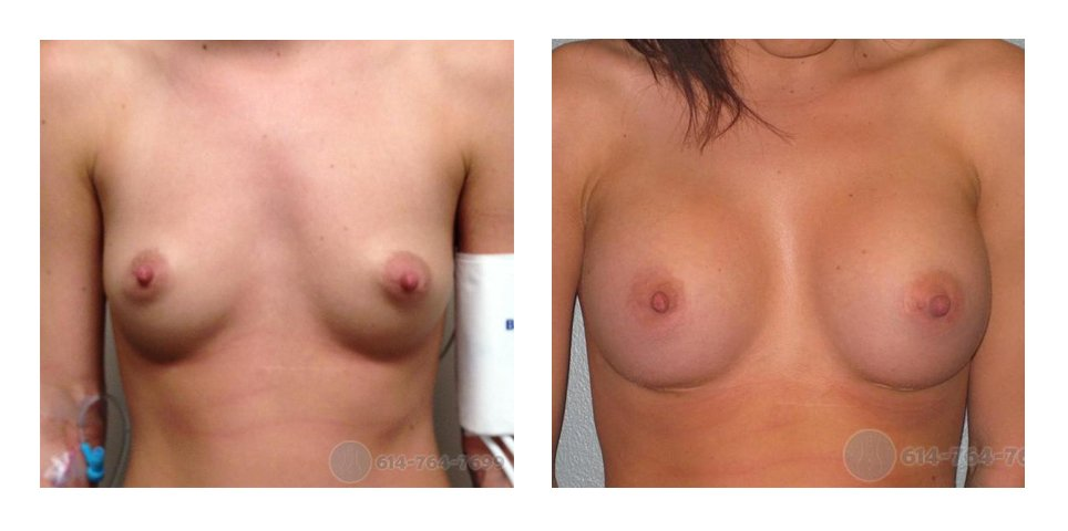 ohio-breast-implant-surgeons-before-after-10015