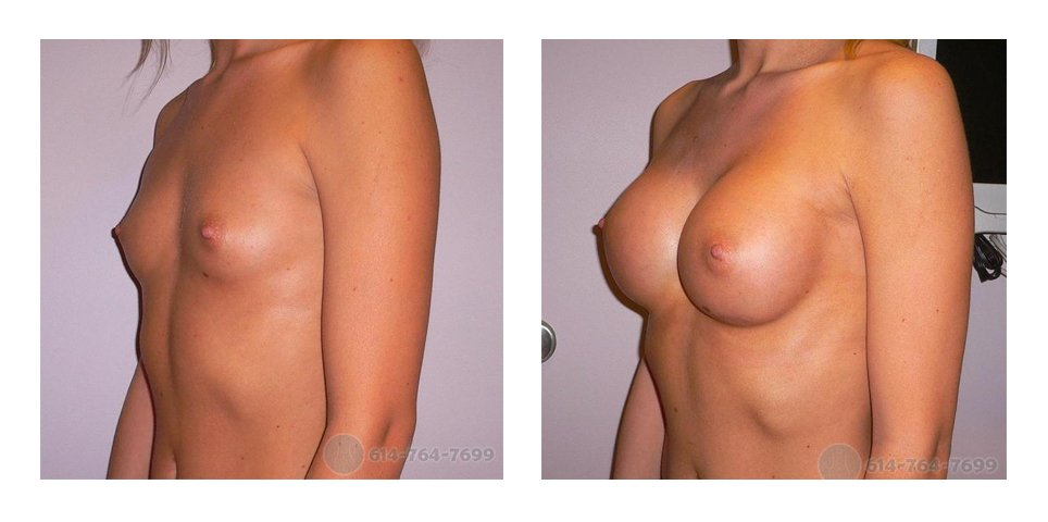 ohio-breast-implant-surgery-before-after-10005