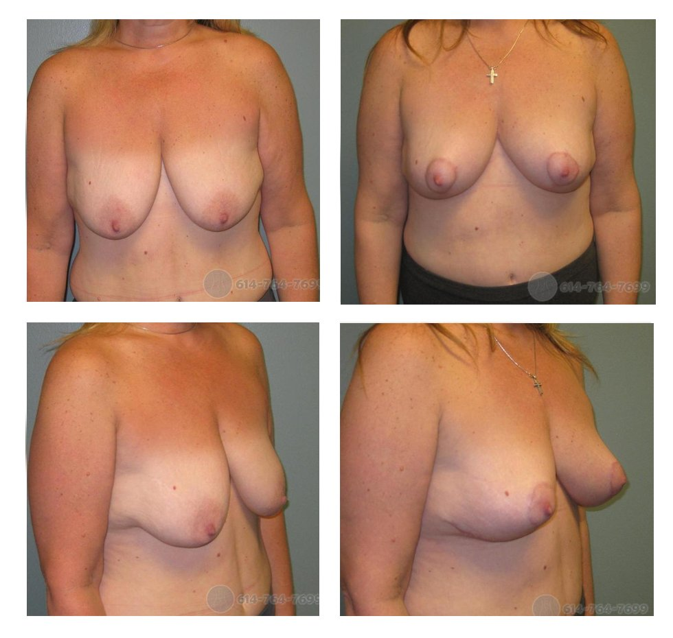 ohio-breast-lift-surgery-before-after-10061