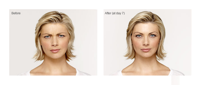 botox columbus oh before and after