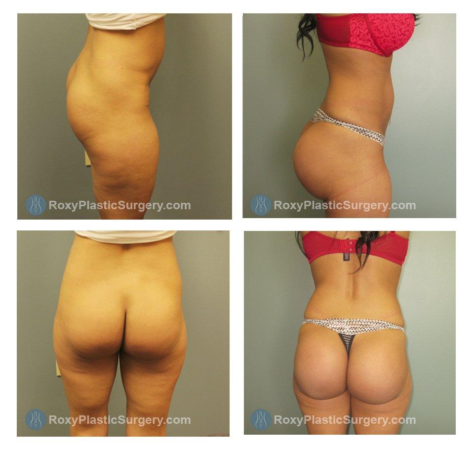 Brazillian Butt Augmentation 6
