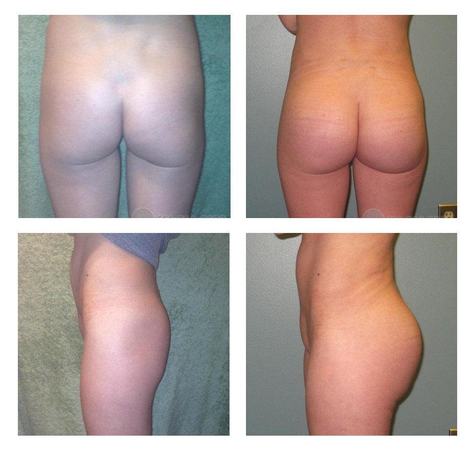 butt- augmentation-surgeons-columbus-ohio-before-after-10025