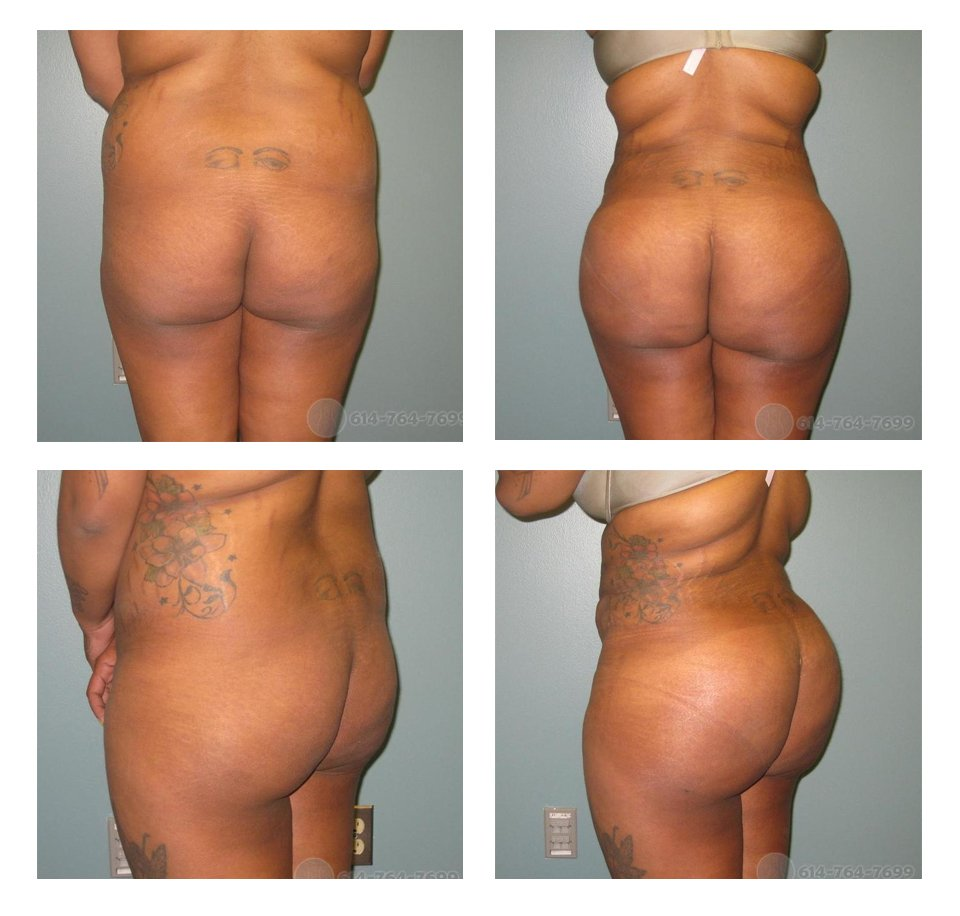 butt-lift-columbus-ohio-before-after-10026