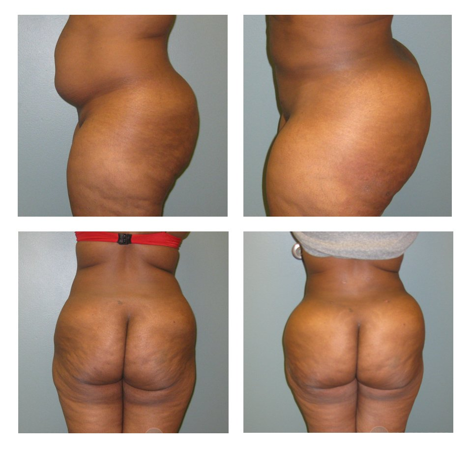 butt-lift-with-fat-grafting-in-ohio-before-after-10081