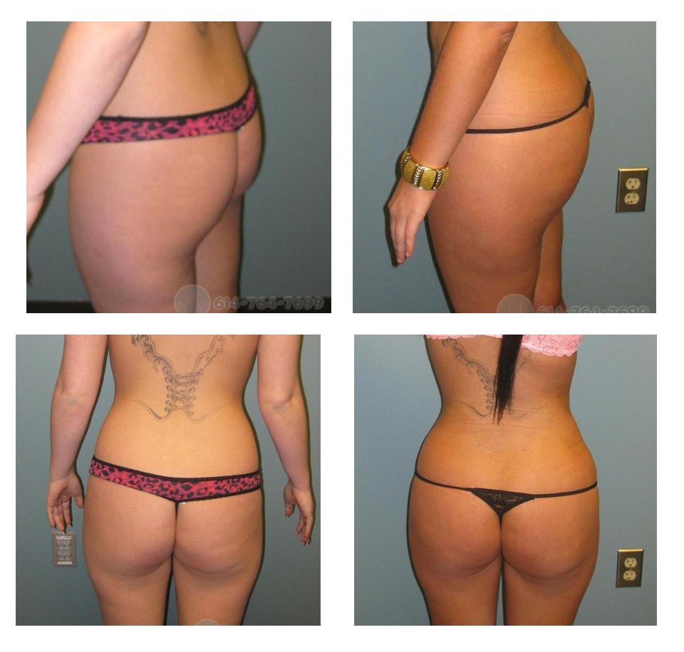 buttock-augmentation-columbus-ohio-before-after-10027