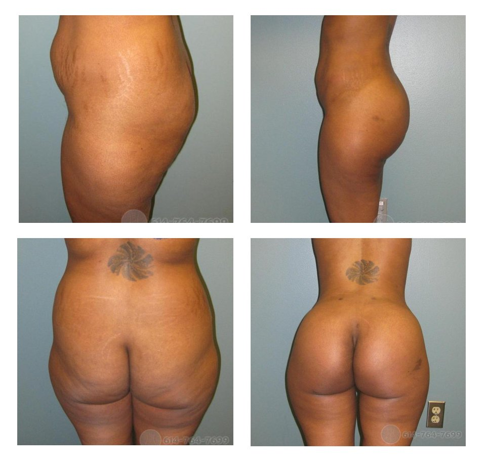 buttock-augmentation-surgeons-ohio-before-after-10023