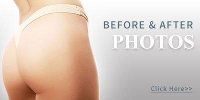 columbus-oh-plastic-surgery-photos-min
