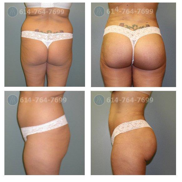 columbus-ohio-brazilian-butt-lift-before-after
