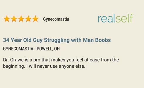 gynecomastia-left