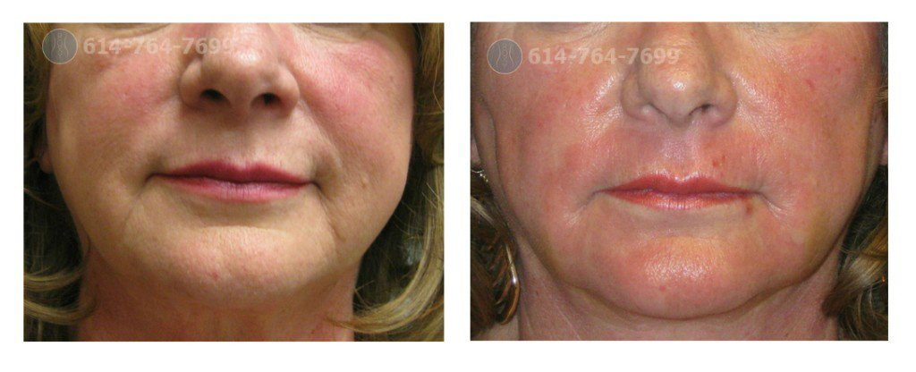 Laser treatments for facial lines