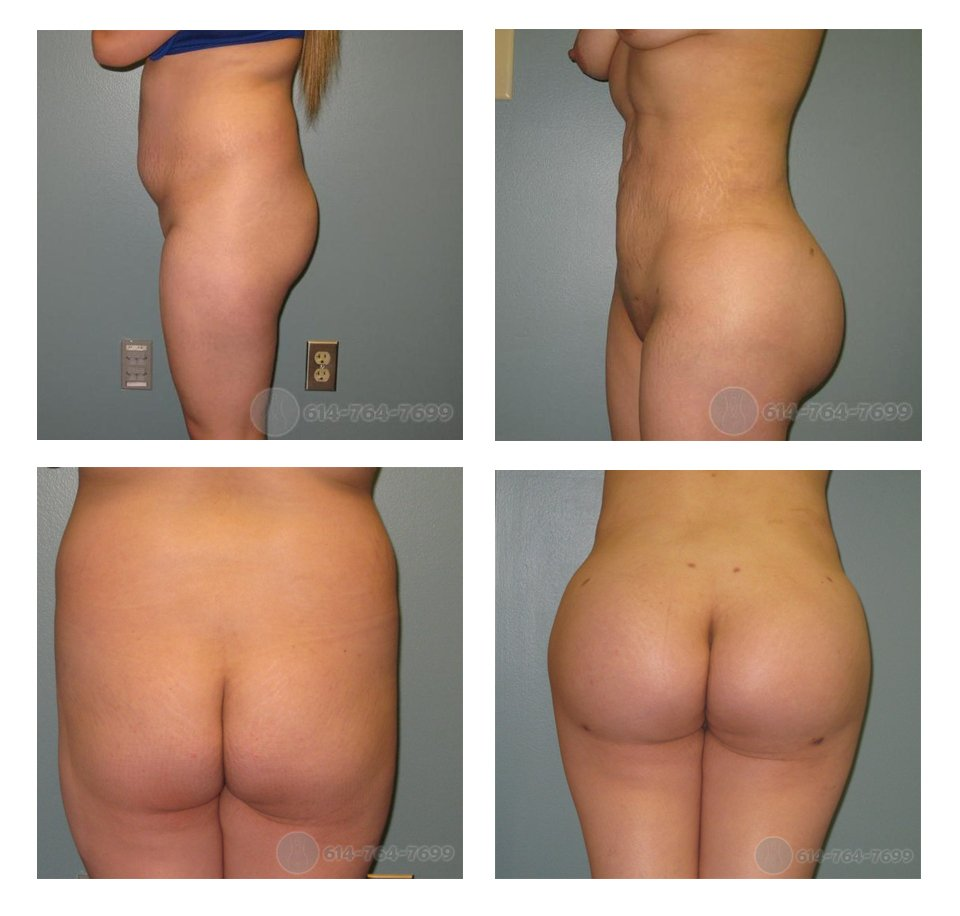 Before And After Butt Implants 75
