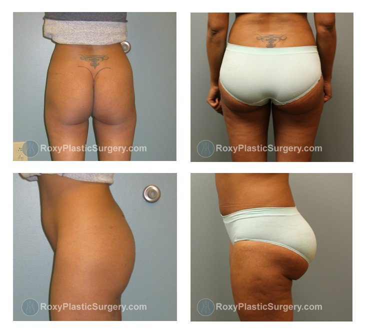 ohio-buttock-augmentation-before-after