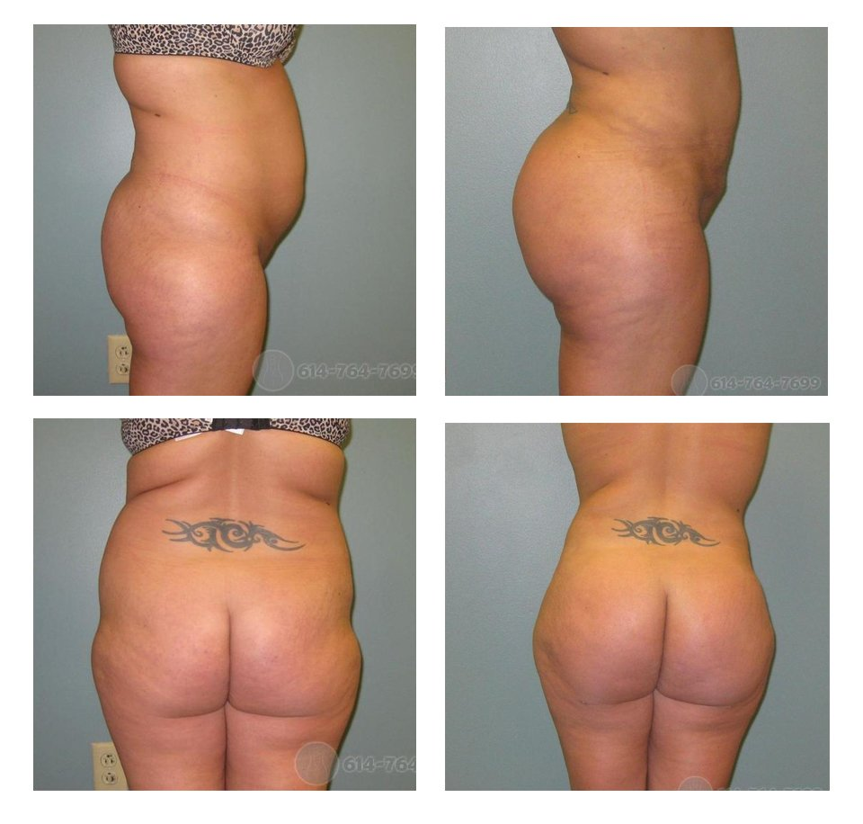 ohio-buttock-augmentation-surgeons-before-after-10076