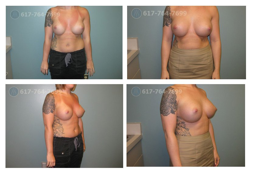 Breast Augmentation Revision 8