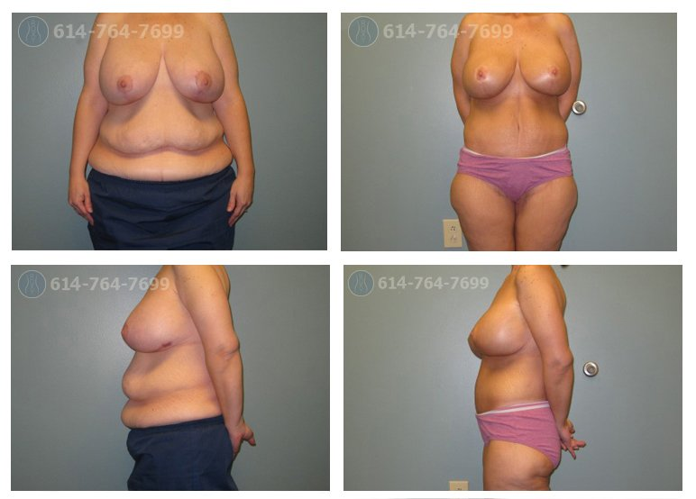 Breast Augmentation Before After 65