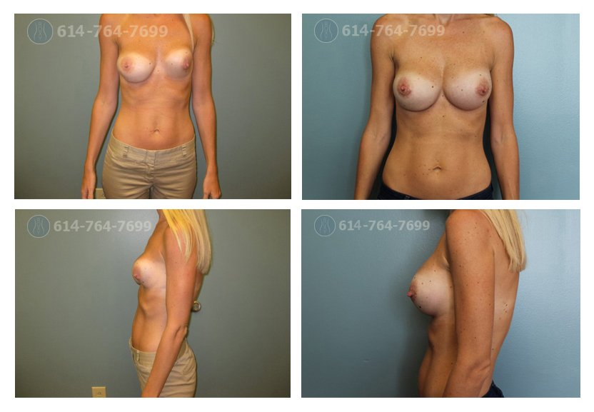 Breast Implant Rupture 117