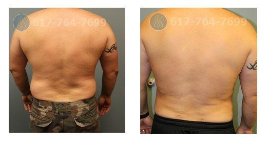 Male liposuction ROXY Plastic Surgery
