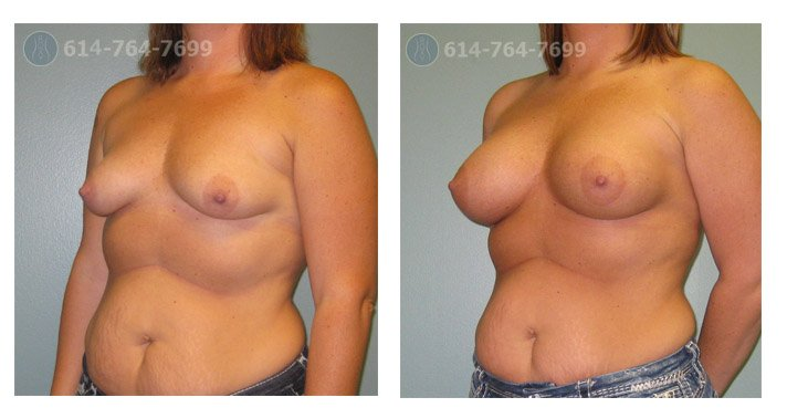 breast-augmentation-before-after-columbus-oh-100041