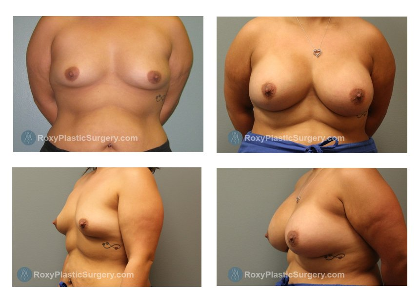 breast-augmentation-before-after-columbus-oh-100050