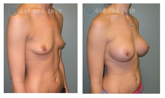 breast-augmentation-columbus-before-after-10023