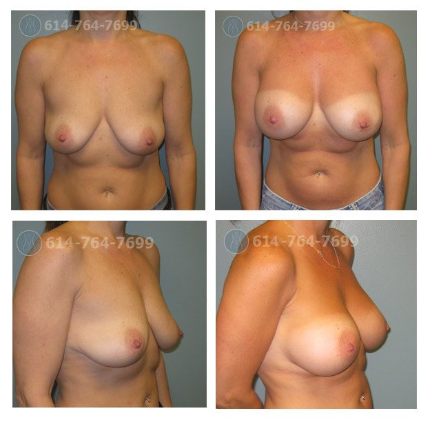breast-augmentation-columbus-oh-before-after-10008