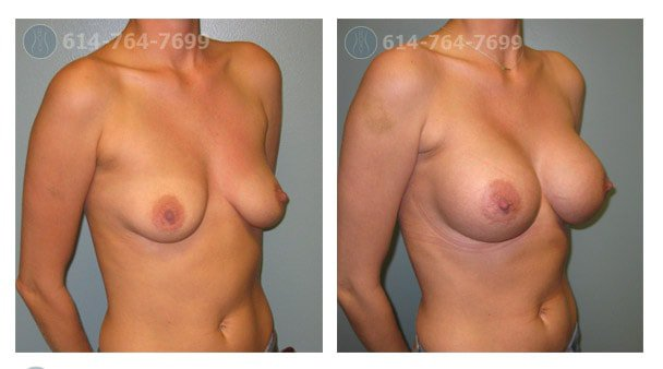 breast-augmentation-columbus-ohio-before-after-10022