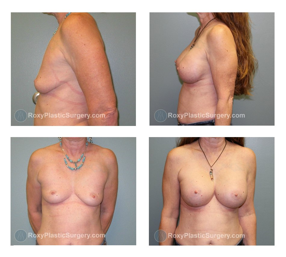 breast-implant--before-after-oh-columbus