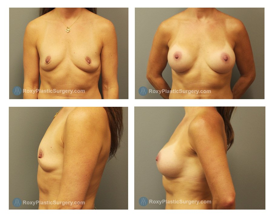 breast-implants-before-after-columbus-oh-100042