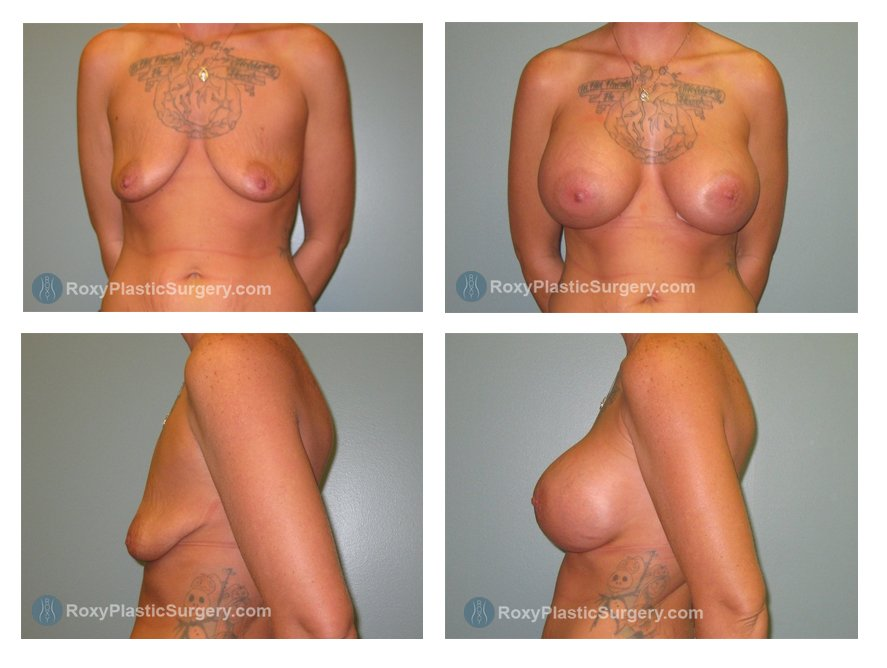saline-breast-augmentation-before-after-columbus-oh-100044