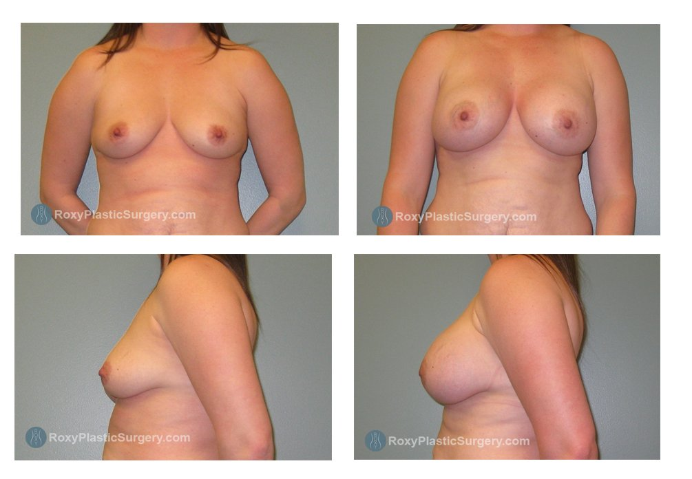 saline-breast-implants-before-after-columbus-oh-100048